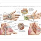 10 inch Photo. Medical illustration showing carpal tunnel