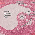ovary mature follicle