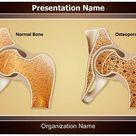 Osteopathy Osteoporosis PowerPoint Presentation
