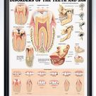 Disorders of The Teeth and Jaw Chart 20x26
