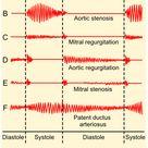 Aortenklappeninsuffizienz – erworbene Herzklappenfehler