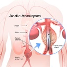 Abdominal Aortic Aneurysm Causes, Treatment, Symptoms & Survival Rate