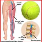 How To Relieve Sciatic Nerve Pain And Back Pain With Just a Tennis Ball