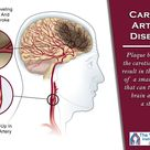 The first sign of carotid artery blockage may be a stroke, mini-stroke, or TIA symptoms