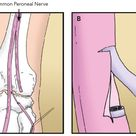 Peroneal or tibial nerve transfer operation makes strides for treatment of foot drop