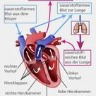 Herzinsuffizienz: Ursachen, Symptome, Behandlung