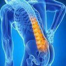 ISG Blockade Diese Übungen helfen gegen Rückenschmerzen   WELT