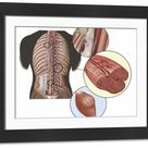 Large Framed Photo. Detail of deep back muscles with a close-up