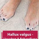 Hallux valgus - Ursachen & Behandlung