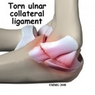 Ulnar Collateral Ligament Injuries – Howard J. Luks, MD