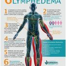 My Under Armor: Do you know about lymphedema? - Cervivor