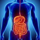 Diverticular Disease and Diverticulitis