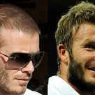 Famous & Bollywood Celebrity Hair Transplants