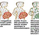 Seminar Report On Haemolytic Disease Of The New Born