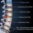 Degenrative Disc Disease