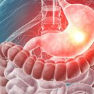 What is Gastroenterology?