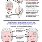 Instant Anatomy - Head and Neck - Areas/Organs - Face - Facial nerve lesions