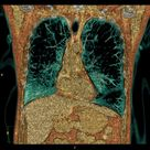 Centrilobular pulmonary emphysema | Radiology Case | Radiopaedia.org