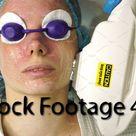 Face photoepilation closeup