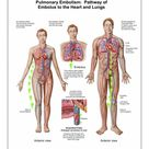 A1 Poster. Pulmonary embolism, pathway of embolus to the heart