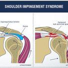 Shoulder Impingement/Rotator Cuff Tendinitis - OrthoInfo - AAOS
