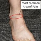 Anterior Ankle Impingement - FootEducation