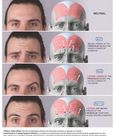 Anatomy-  Muscles of Facial expression