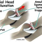 Radial head subluxation results from sudden traction on the outstretched pronated arm of child   > tearing and displacement of the annular ligament