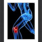 Framed Photo. Knee pain, conceptual artwork