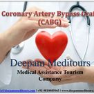 Things you need to know about CABG