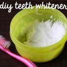 Hydrogen Peroxide Teeth