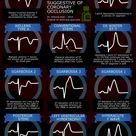 Different EKG findings of STEMI