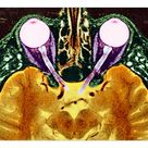 10 inch Photo. Vision and the brain, MRI scan