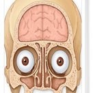 Box Canvas Print. Normal coronal section of the skull and brain