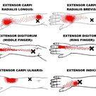 The Definitive Guide to Wrist Extensors Anatomy, Exercises & Rehab