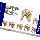 1000 Piece Puzzle. Anatomy of acromioclavicular joint rupture