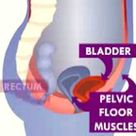 BEST  PELVIC FLOOR EXERCISES for Prolapse and Overactive Bladder!