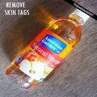Tag Remover