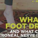 What Is Foot Drop and What Causes This Peroneal Nerve Injury
