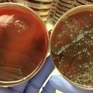 Proteus mirabilis on BAP