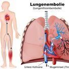 Blutgerinnungsstörung: Thrombose wirksam vorbeugen