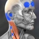 These trigger points in the sternocleidomastoid can refer pain into the ear, and also, when stimulat