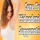 Cure For Hidradenitis Suppurativa, Blocked Sweat Gland Under Arm, What Is Hs Skin Disease