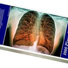 1000 Piece Puzzle. Lungs, 3D MRI scan