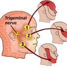 Trigeminal Neuralgia Treatment, Symptoms, What is, Surgery, Causes