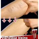 Varicose Veins Miracle Cream