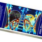 1000 Piece Puzzle. Colour MRI scan of abdomen showing kidneys &