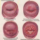 Vintage venereal disease print. Female reproductive system.   Etsy