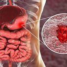 10 Amazing Home Remedies For Treating Stomach Ulcers