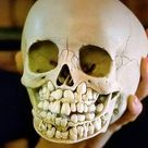 If you didn`t know how your skull used to look like when losing baby teeth, well, here you have